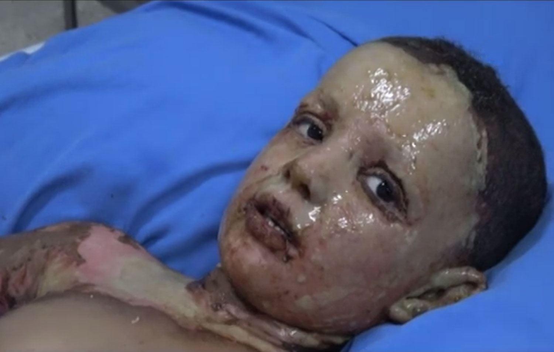 Лицето на войната в Сирия – турски химически оръжия срещу кюрдски деца!?