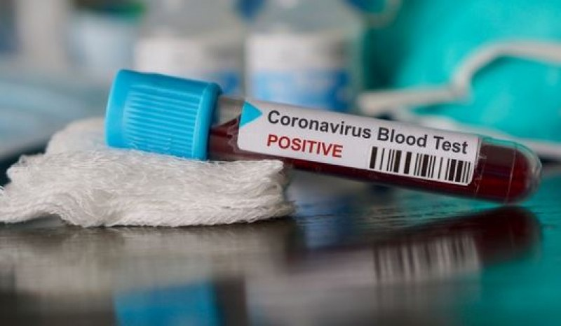 Появиха се нови симптоми при заразените с коронавирус