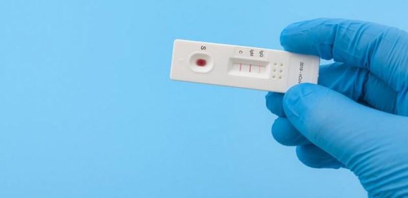 Нов тест за клетъчен имунитет правят в Пловдив и София