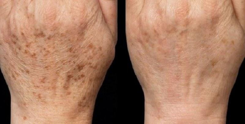 Каква е причината за появата на старчески петна