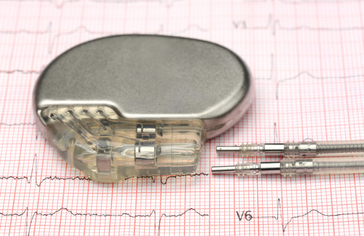 НЗОК покрива ли поставяне на електрокардиостимулатор?