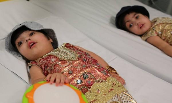 Сиамските близначки Сафа и Марва – разделени след 3 дълги операции