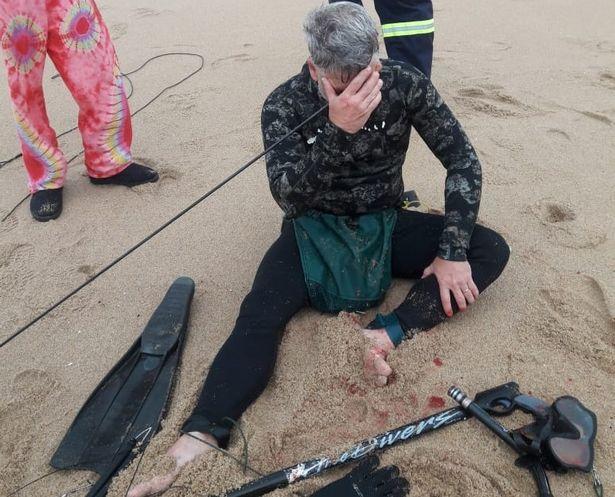 Оцеля по чудо! Острие на харпун влезе откъм скулата и излезе до лявото слепоочие на водолаз СНИМКИ 18+