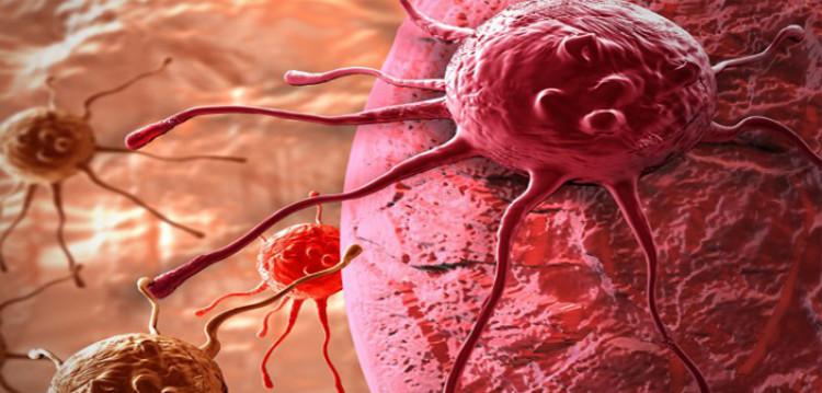 Първите 7 симптома на рак, които пренебрегват 90% от хората